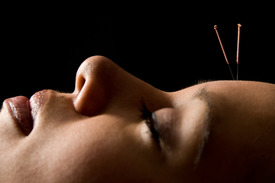 Acupuncture Cambridge ON
